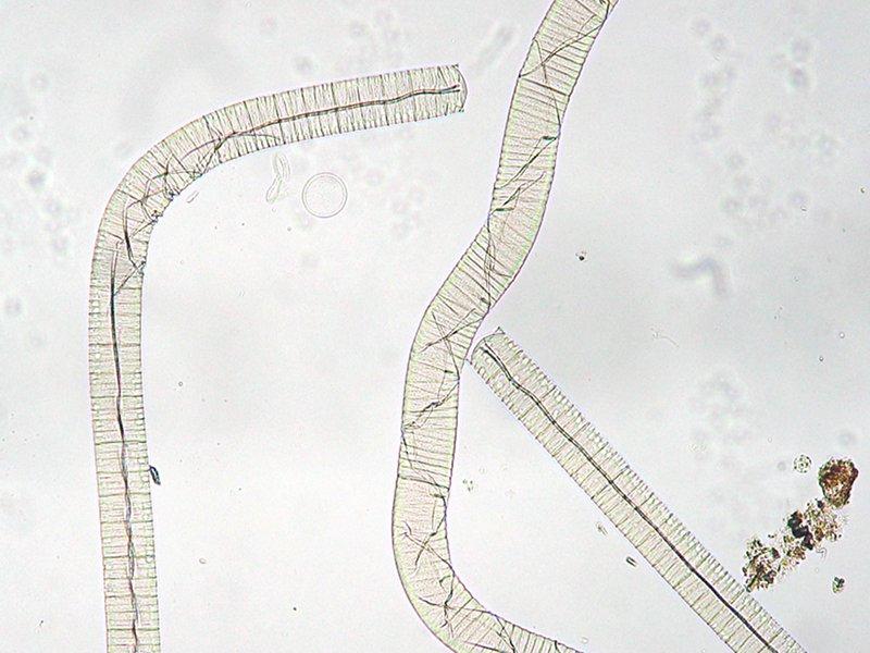 Korseby Online - Cyanobacteria